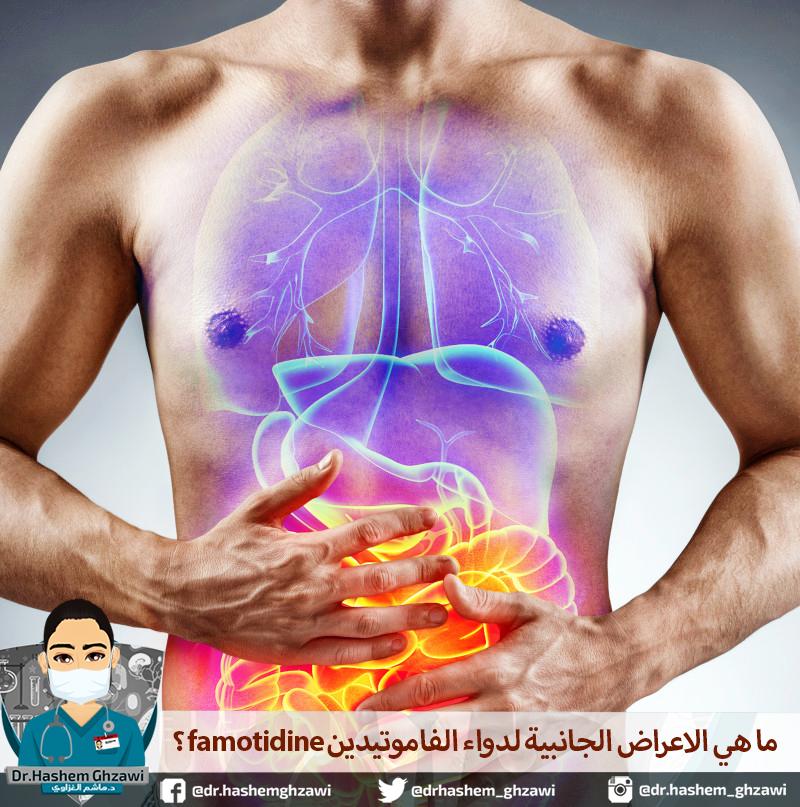 ماهي الاعراض الجانبية لدواء الفاموتيدين famotidine؟