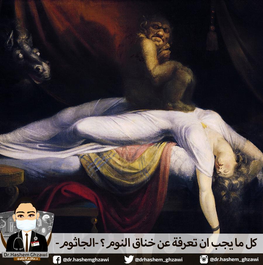 ماهو خناق النوم او الجاثوم؟